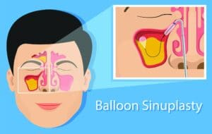 Balloon Sinuplasty graphic | Northeast Atlanta ENT