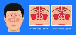 Deviated Septum Graphic | Northeast Atlanta ENT